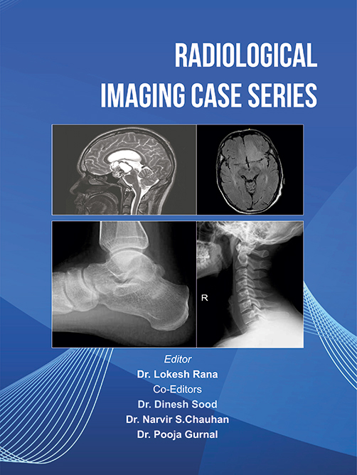 Radiological Imaging Case Series by Lokesh Rana